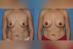 Breast-Augmentation-Dickinson-Newport-Beach-Orange-County-copy