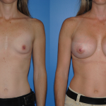 Breast Augmentation-Dickinson