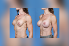 Breast-Augmentation-Elite-Athlete-II-Dickinson