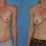 Breast Augmentation-Newport Beach-California