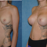 Breast Augmentation-Newport Beahc-Orange County-Silicone Breast Augmentation