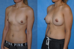 Breast-Augmentation-Orange-County-Newport-Beach