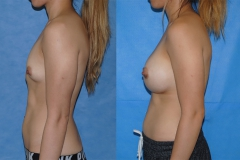 Breast-Augmentation-Orange-County