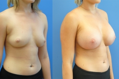 Breast-Augmentation-Silicone-Brian-Dickinson-newport-beach