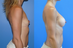 Breast-Augmentation-Silicone-Implants-Areola-Incision