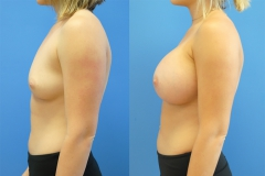 Breast-Augmentation-Silicone-implants-before-and-after