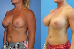 Breast-Augmentation-plastic-surgeon-newport-beach-brian-dickinson