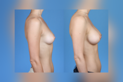 Breast-Augmentation Silicone-Implants_Brian-Dickinson-MD