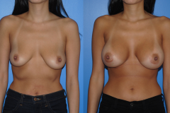 Breast-Augmentation_Silicone-Breast-Implants_Brian-Dickinson-M.D