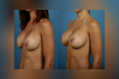 Breast-Augmentation_Sizing_Silicone-Breast-Implants-Newport-Beach