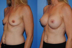Breast-Augmentation_Summer_Newport-Beach_Brian-Dickinson-MD