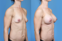 Elite-Athletes_Orange-County_Breast-Augmentation