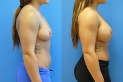Fitness-Model-Newport-Beach-Breast-Augmentation-plastic-surgeon