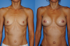 Newport-Beach-Breast-Augmentation-Dickinson