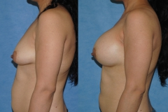 cosmetic-surgeon-newport-beach-Orange-County