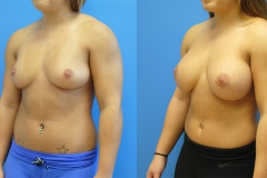 fintess-model-breast-augmentation-orange-county