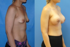 newport-beach-cosmetic-surgery