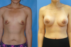 top-plastic-surgeons-newport-beach
