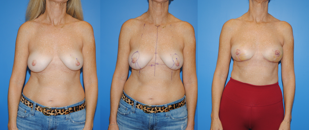 1_Oncoplastic-Reconstruction-of-Lumpectomy-Defects
