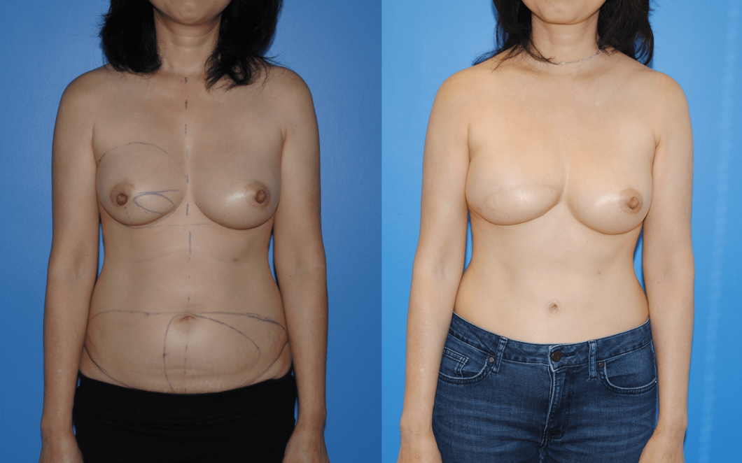 2_DIEP-Flap-Breast-Reconstruction