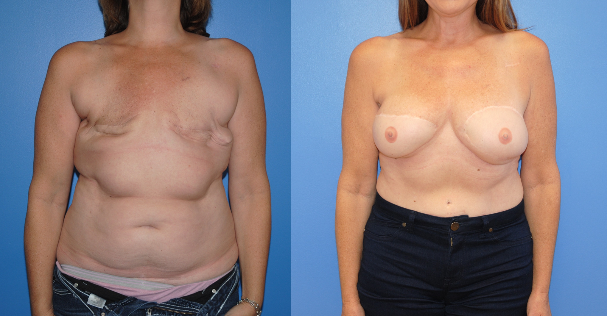 3D-Tatoo-DIEP-Breast-Reconstruction