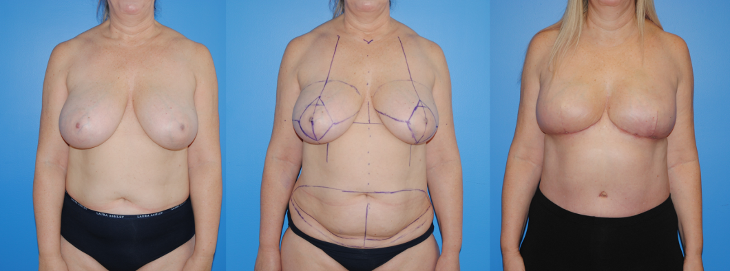 Bilateral-DIEP-Flap-Breast-Reconstruction-PALBB-2