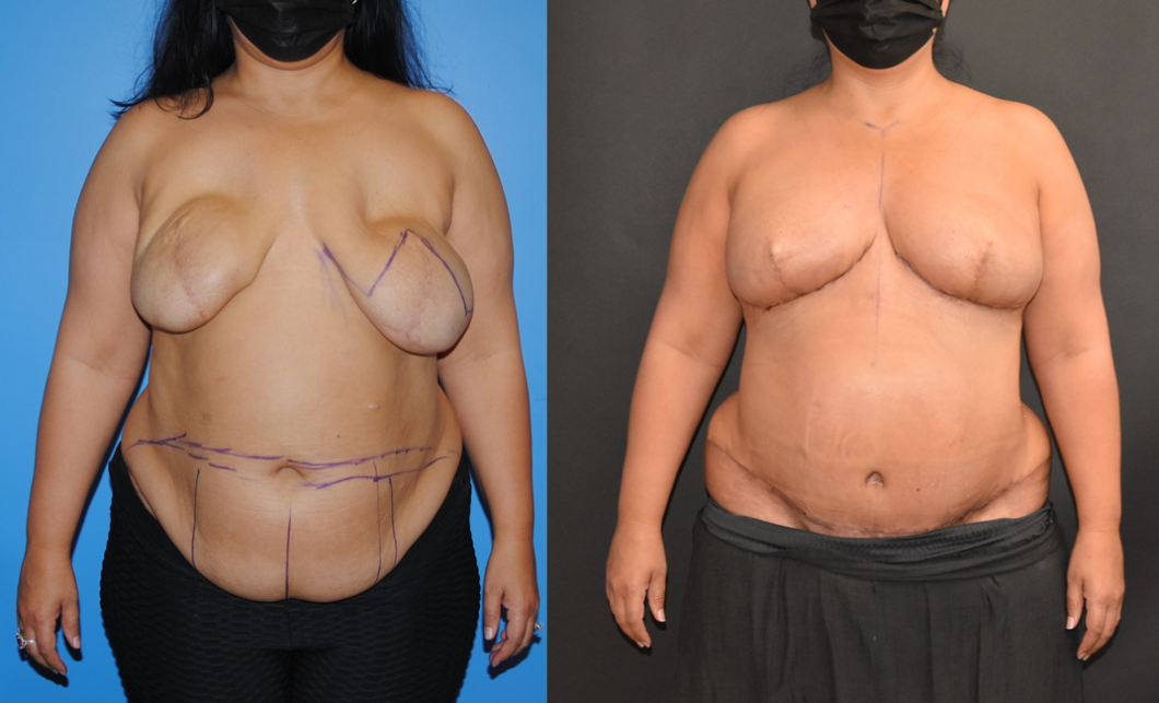 Bilateral-DIEP-Flap-Breast-Reconstruction-after-Implants-Brian-P.-Dickinson-M.D.