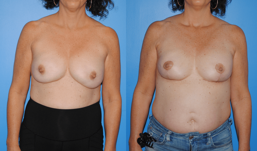 Bilateral-Implant-Based-Breast-Reconstruction
