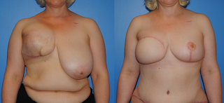Breast Reconstruction with autologous tissue