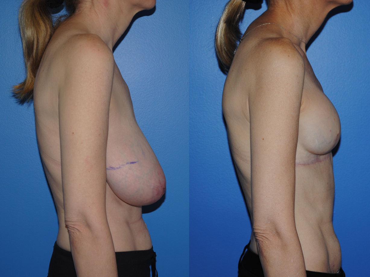 Breast Reconstruction Wise Pattern Newport Beach