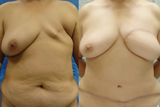 Breast Reconstruction with DIEP Flaps