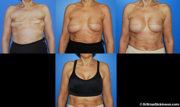 Silicone Breast Implant Breast Reconstruction in Newport Beach