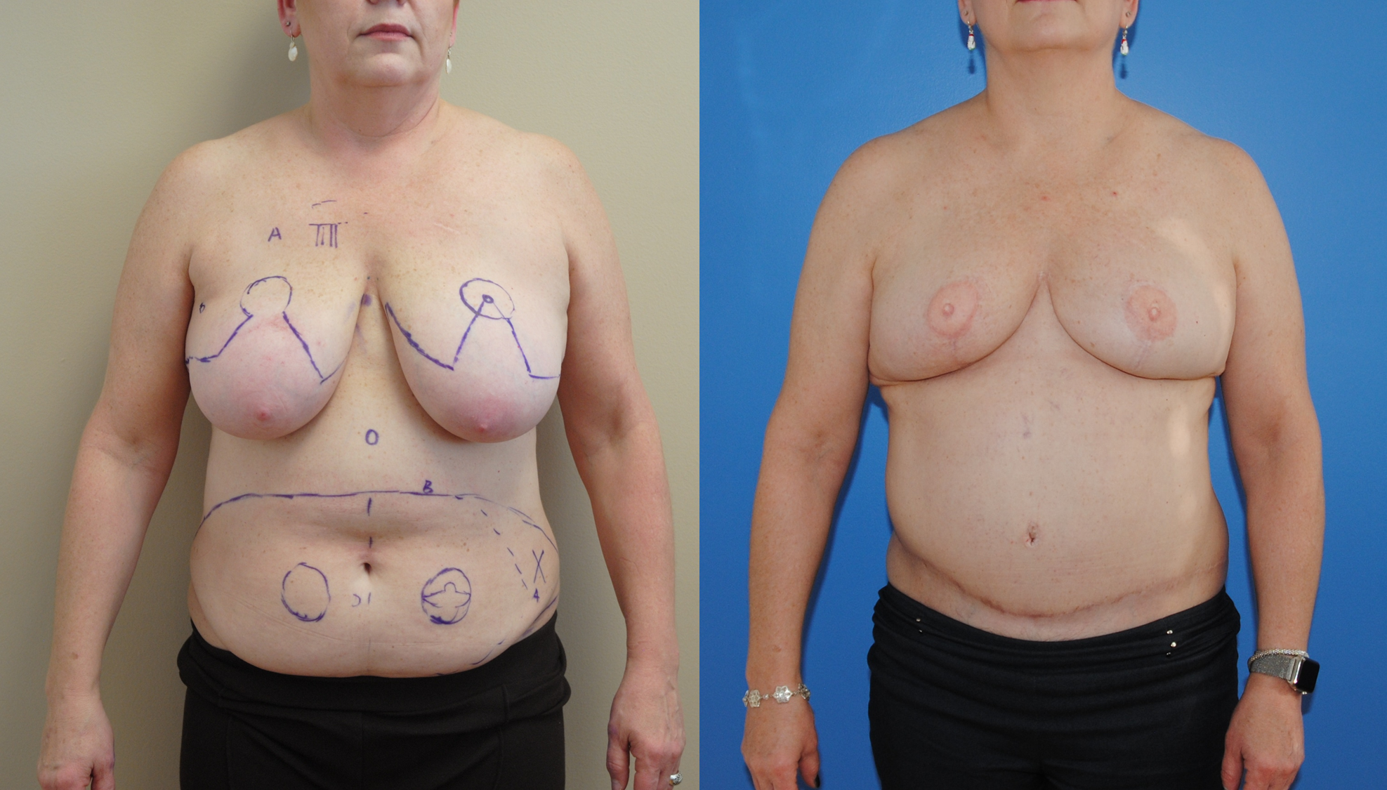 DIEP-Bilateral-Flap-Following-Mastectomy