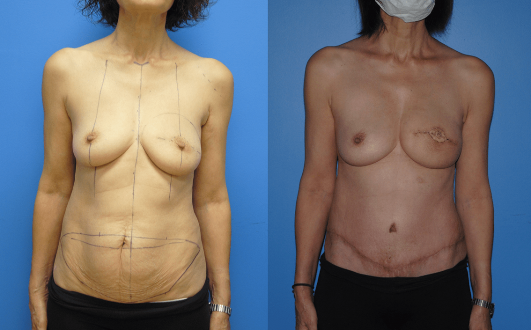 DIEP-Flap-Before-After