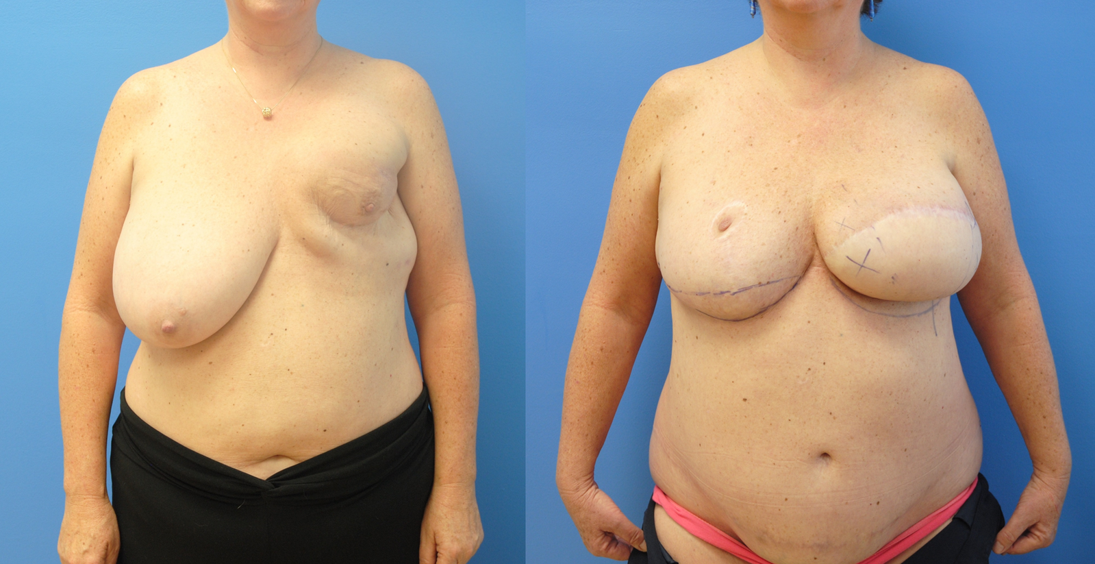 DIEP-Flap-Breast-Reconstruction-1