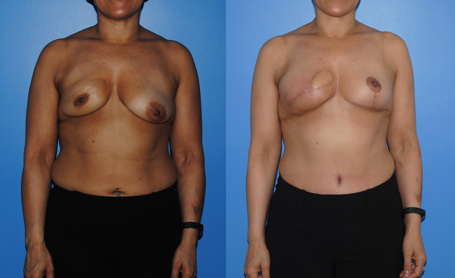 DIEP-Flap-Breast-Reconstruction