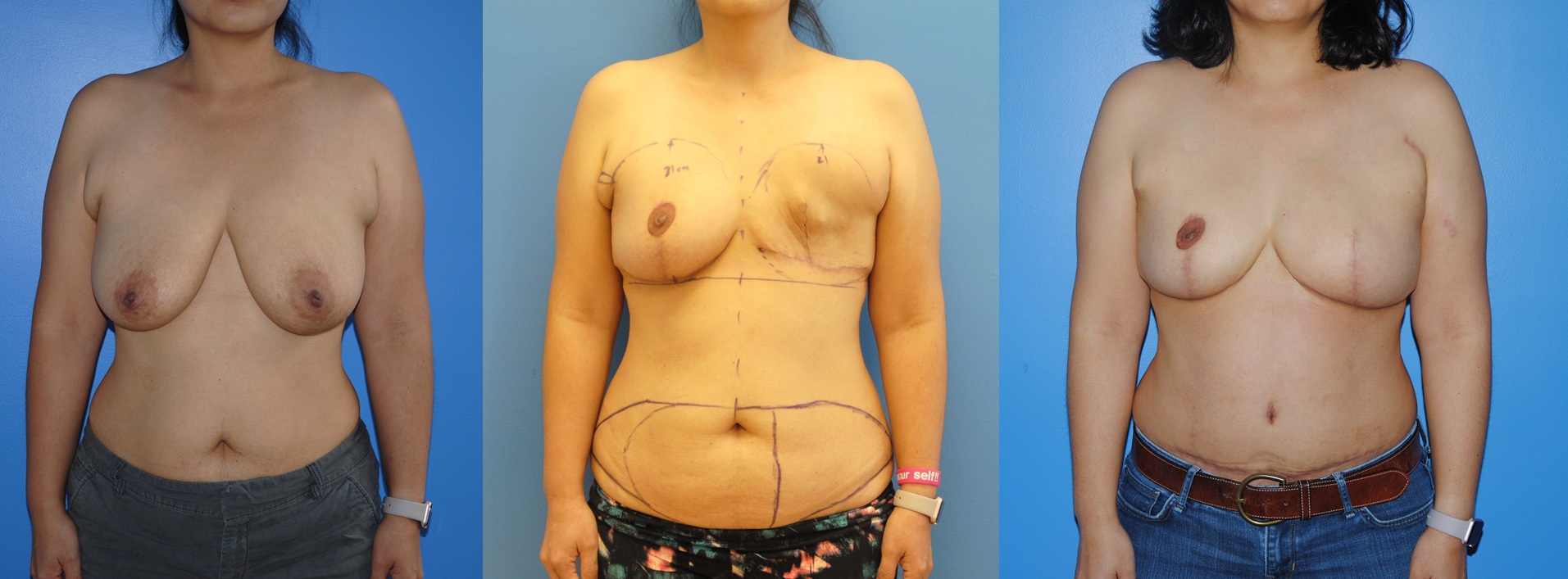 DIEP Flap Breast Reconstruction (2)