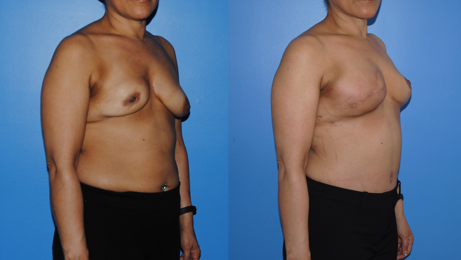 DIEP-Flap-Breast-Reconstruction-Oblique-Breast-Reconstruction