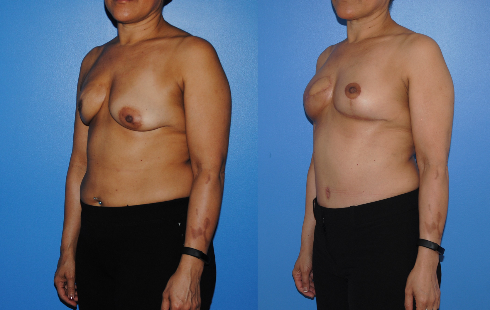 DIEP-Flap-Breast-Reconstruction-Oblique