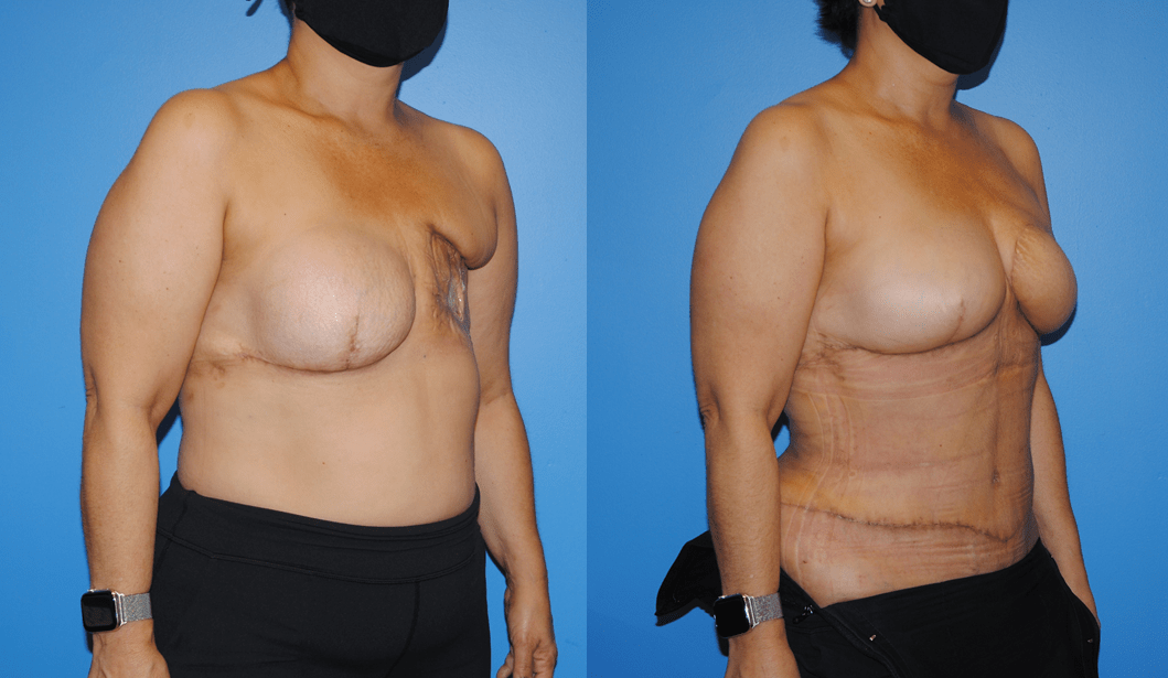 DIEP-Flap-Breast-Reconstruction-Post-Radiation-Therapy-Newport-Beach-Brian-Dickinson
