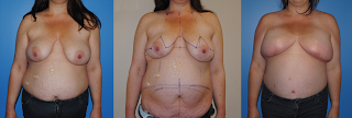DIEP Flap Breast Reconstruction following mastectomy