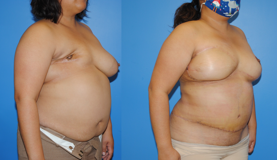 DIEP-Flap-Reconstrcution-after-Mastectomy-and-Radiation-Therapy-Oblique-Photo