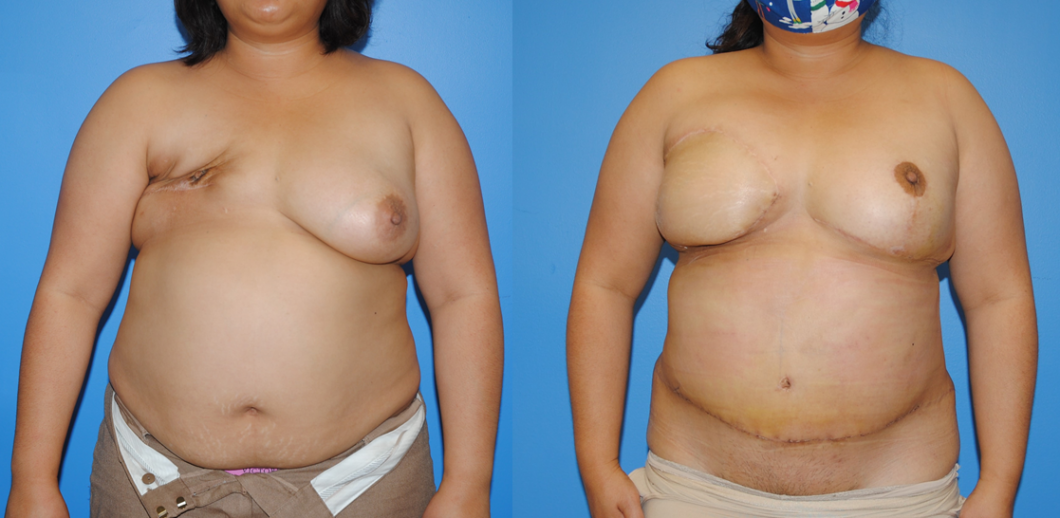 DIEP-Flap-Reconstrcution-after-Mastectomy-and-Radiation-Therapy