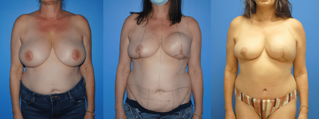 DIEP-Flap-Reconstruction-Post-Mastectomy-and-Tissue-Expander