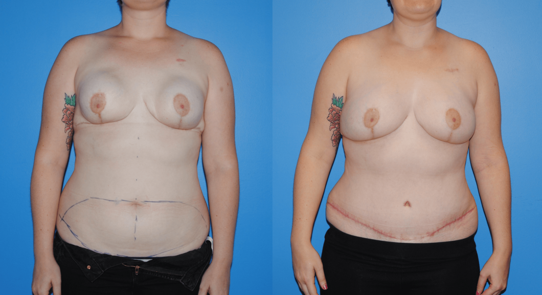 DIEP-Flap-Reconstruction