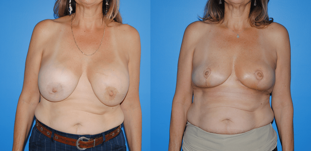 Oncoplastic-Reconstruction-of-Lumpectomy-Radiation-Defects