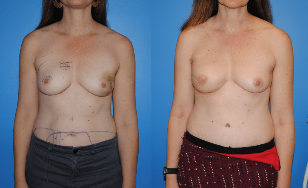 Right-Breast-DIEP-Flap-Breast-Reconstruction