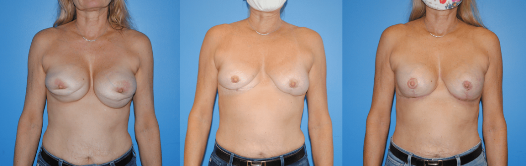 Staged-Before-and-After-Removal-and-Replacement-with-Mastopexy.