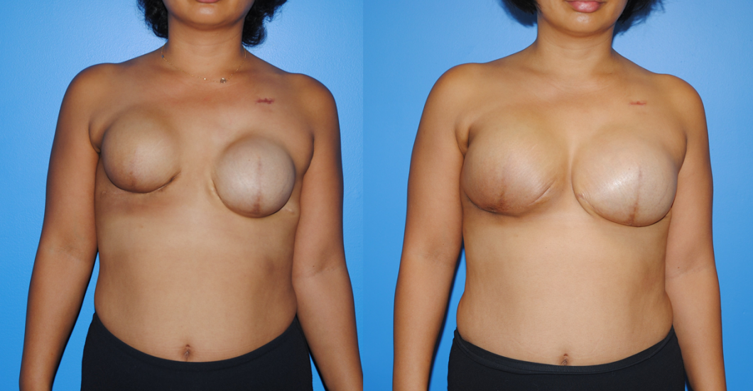 Tissue-Expander-and-Breast-Implant-Reconstruction