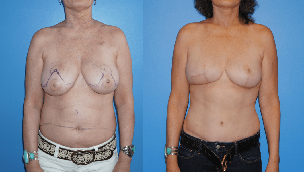 Unilateral-DIEP-Flap-Reconstruction